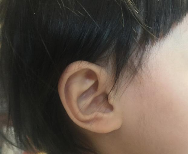滲出性中耳炎はどんな症状があるの?